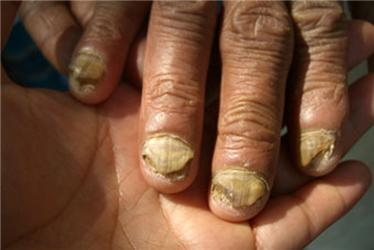 Účinek pesticidů na ruce farmáře je alarmující, zbytky této látky obsahuje itradiční bavlněné oblečení